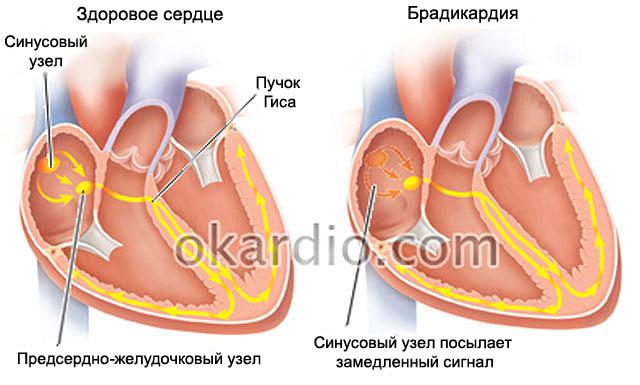 Брадикардия сердца: что это такое, причины, симптомы и лечение