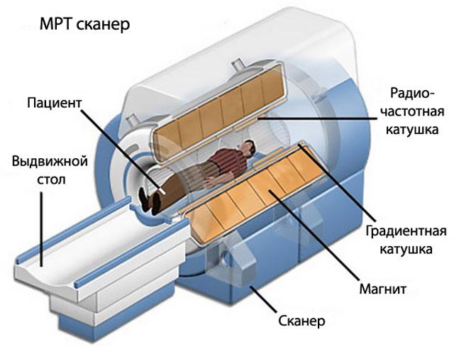 строение аппарата МРТ