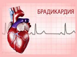 Обзор брадикардии сердца: почему возникает, опасна ли, диагностика и лечение