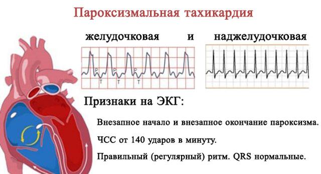 желудочковая и наджелудочковая пароксизмальная тахикардия