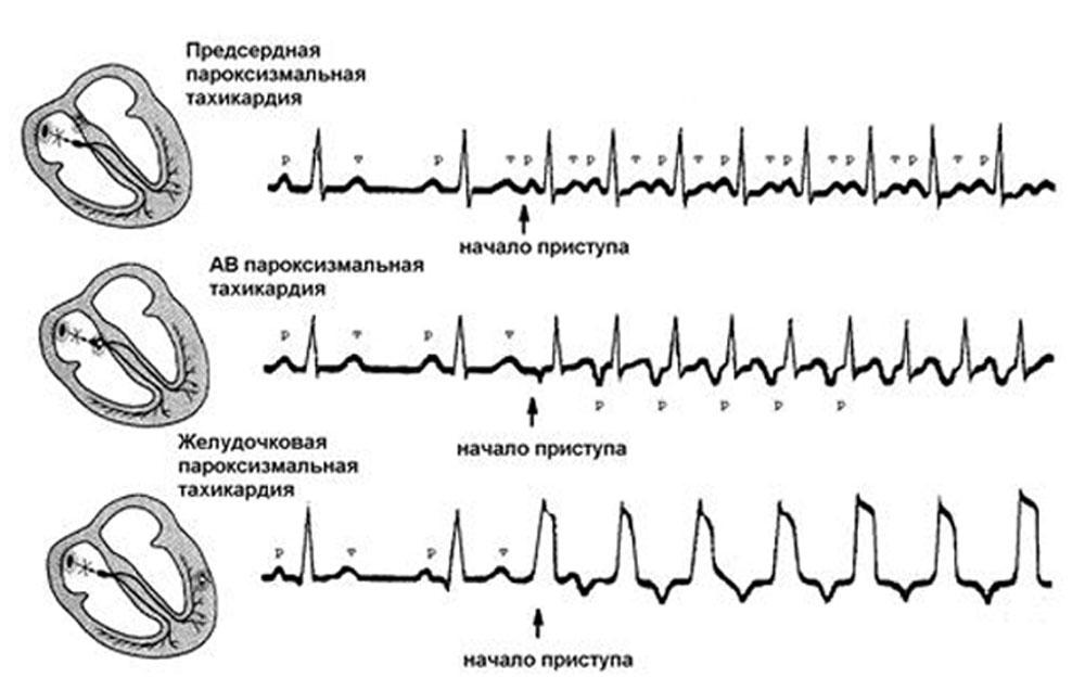 Пароксизмальная тахикардия: симптомы и лечение, причины, первая помощь