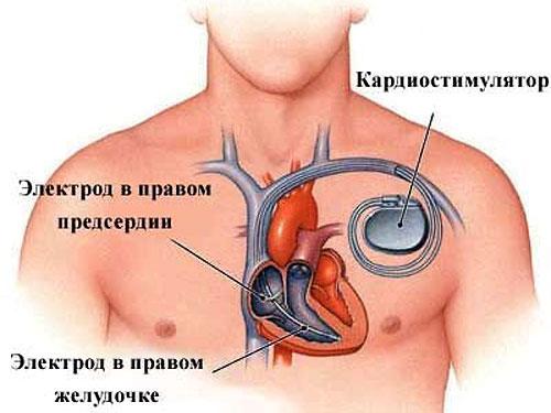 установленный кардиостимулятор