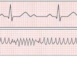 нормальный график ЭКГ и при тахикардии
