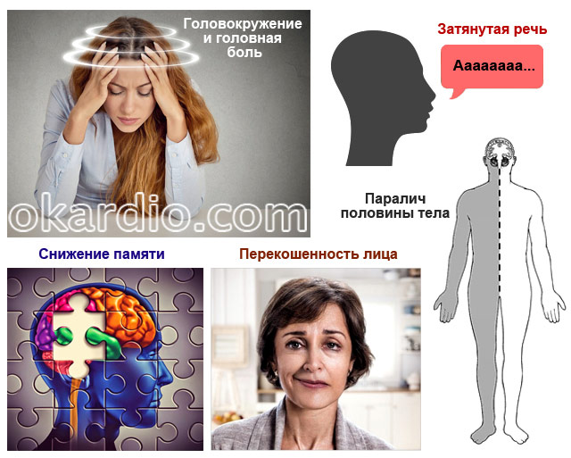 симптомы нарушения кровоснабжения в мозге и руке