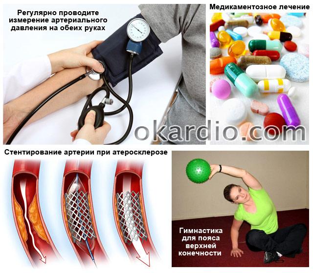 лечение при наличии разницы давления между правой и левой рукой