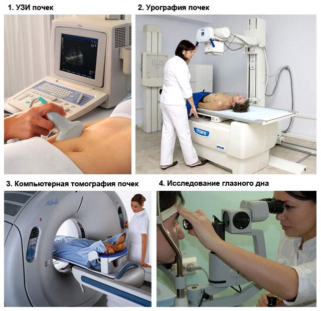 методы диагностики почечного давления