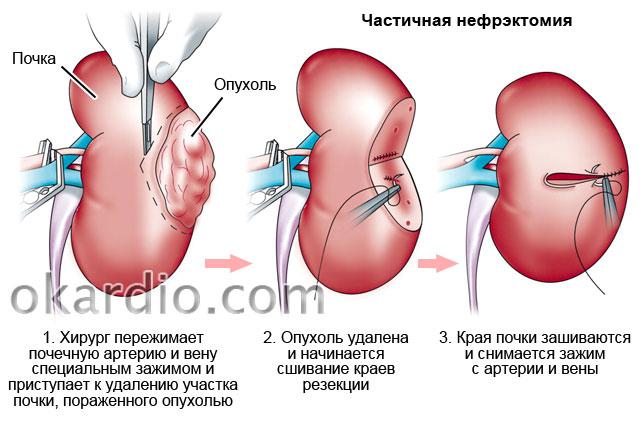 частичная нефрэктомия