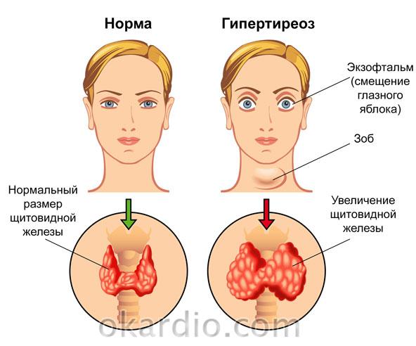 видимые симптомы гипертиреоза