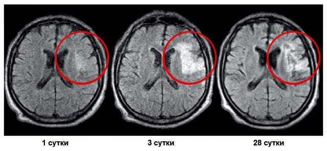 ишемический инсульт на снимках МРТ
