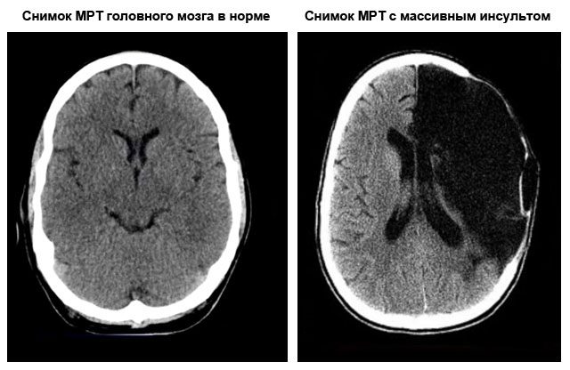 снимок МРТ с массивным инсультом