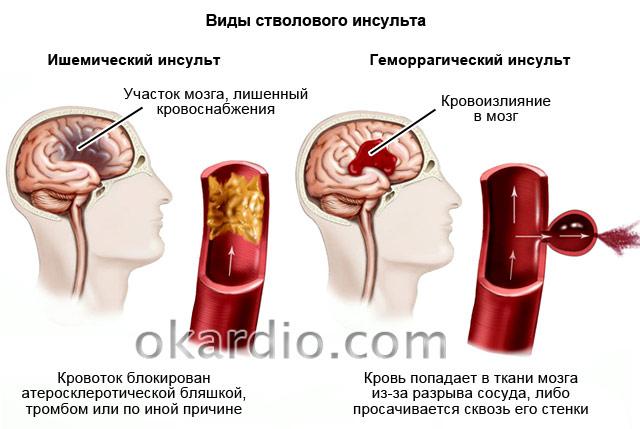 виды стволового инсульта