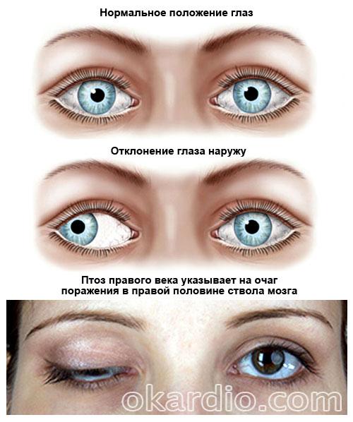 глазные симптомы стволового инсульта