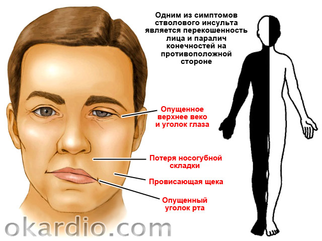 перекошенность лица и паралич конечностей при стволовом инсульте