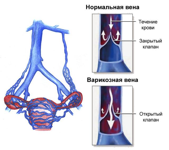 Варикозное расширение вен малого таза у женщин: симптомы и лечение