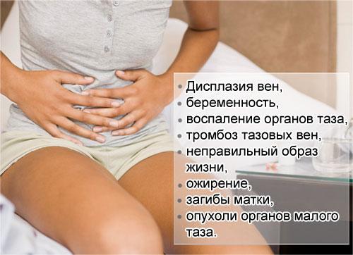причины развития варикозного расширения вен малого таза