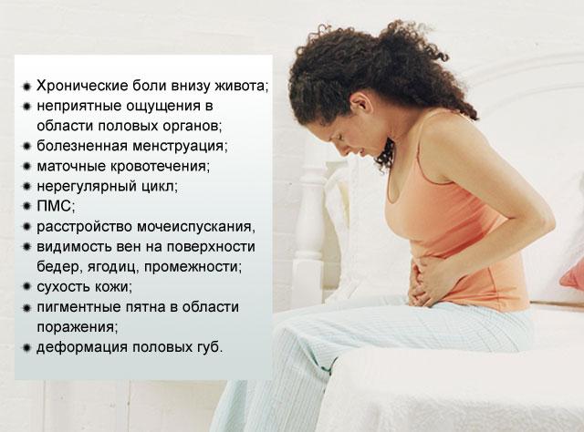симптомы варикоза вен малого таза у женщин