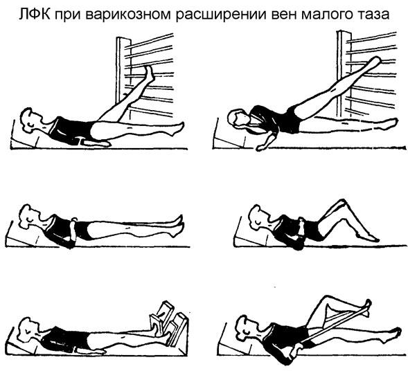 лечебная гимнастика при варикозном расширении вен малого таза