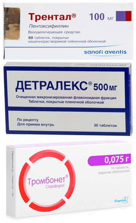 препараты Трентал, Детралекс и Тромбонет