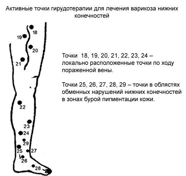биологически активные точки при варикозном расширении вен на ногах