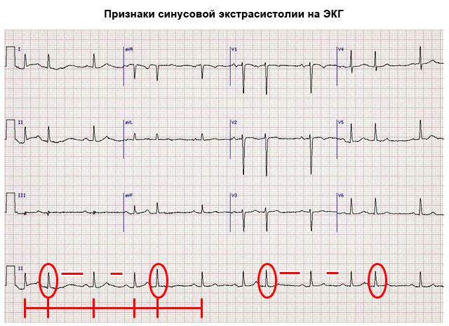 признаки синусовой экстрасистолии на ЭКГ