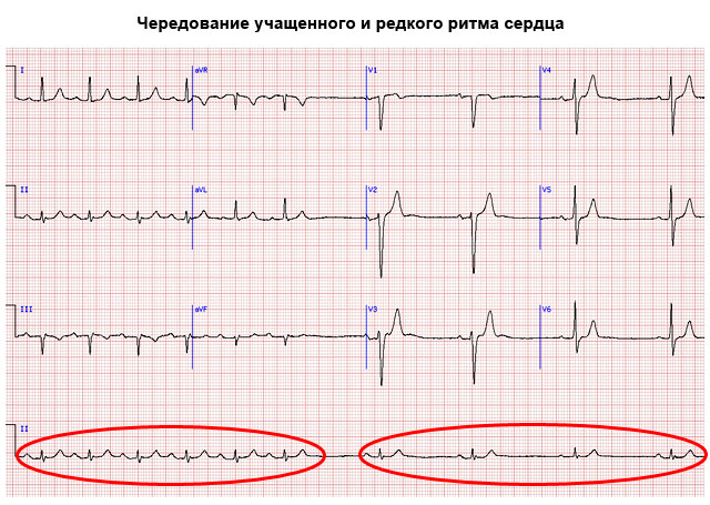 чередование учащенного и редкого ритма сердца