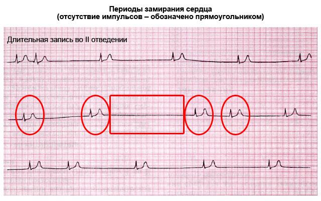периоды замирания сердца
