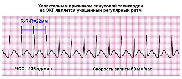 синусовая тахикардия на ЭКГ