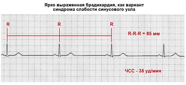 брадикардия на ЭКГ