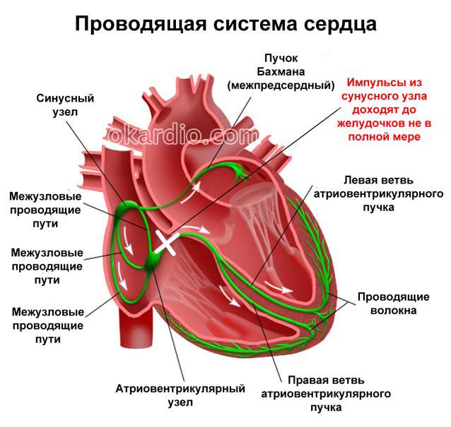 слабость синусового узла в проводящей системе сердца