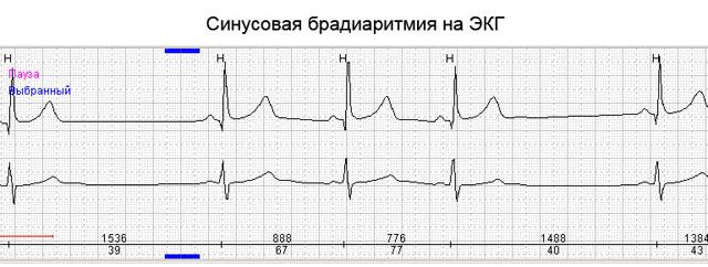 синусовая брадиаритмия на ЭКГ