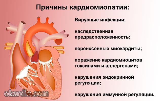 возможные причины кардиомиопатии