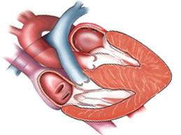 Обзор кардиомиопатии: причины, диагностика, лечение и прогноз