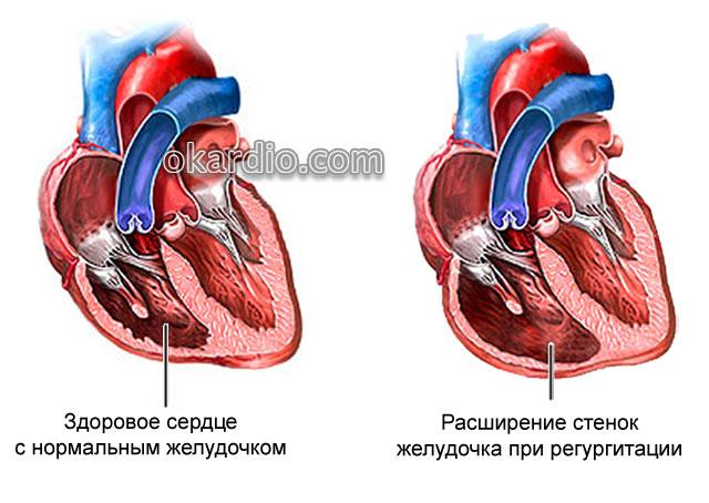 расширение желудочка из-за трикуспидальной регургитации
