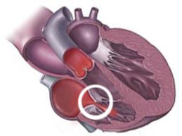 Обзор трикуспидальной регургитации: причины, степени, лечение