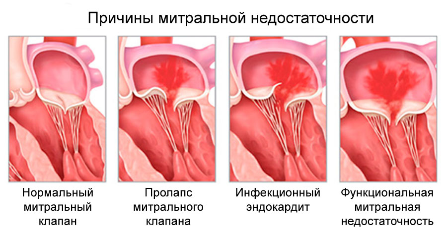 Митральная регургитация: причины, симптомы, степени и лечение