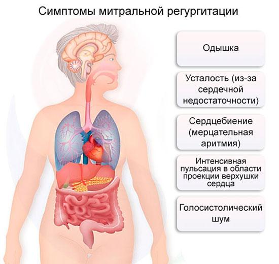 симптомы митральной регургитации