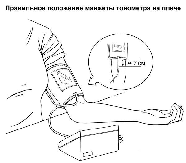 правильное положение манжеты тонометра на плече