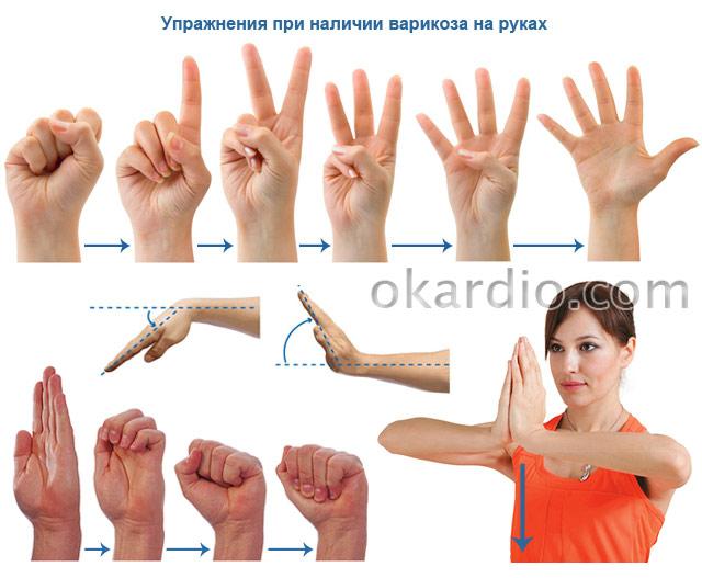 упражнения при наличии варикоза на руках