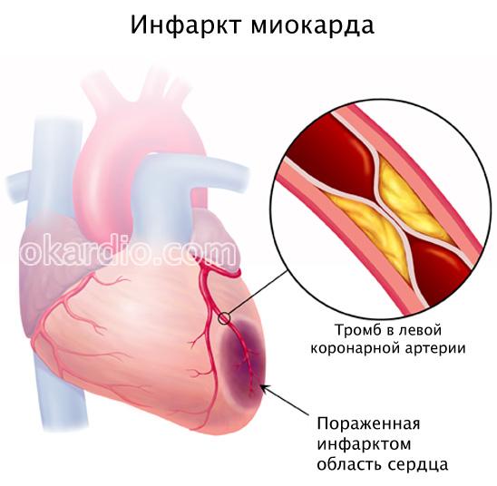 Можно ли макароны после инфаркта