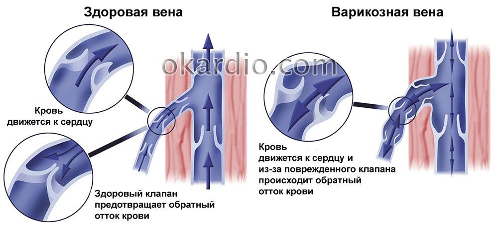 Операция при варикоцеле: показания, как проходит, осложнения и прогноз