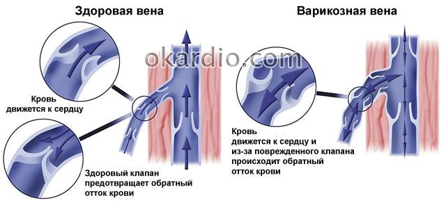 механизм циркуляции крови в здоровых и варикозных венах