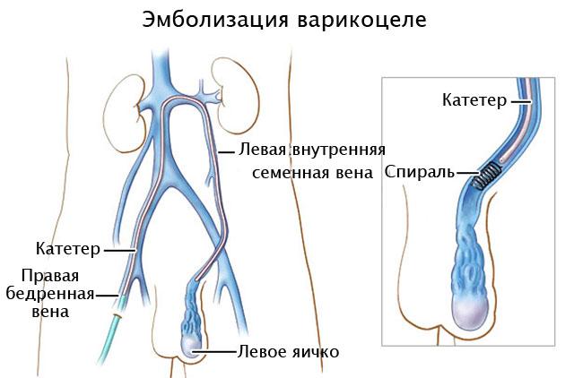 эндоваскулярная операция по удалению варикоцеле
