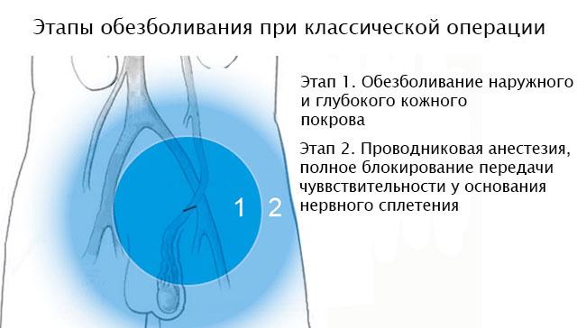 пример анестезии при классической операции по удалению варикоцеле