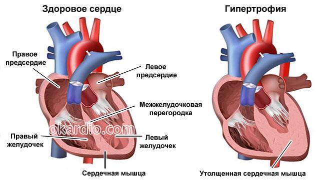 сердечная гипертрофия