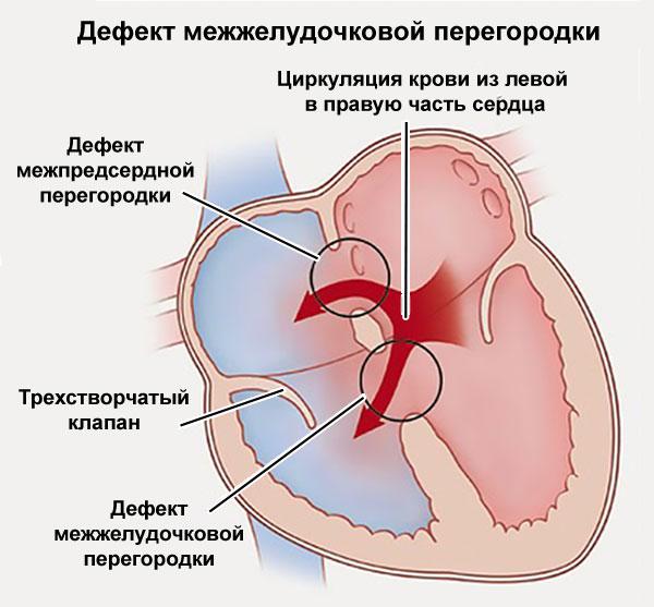 дефект межжелудочковой перегородки