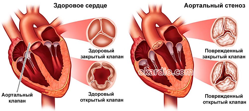 часто бывает, кальциноз митрального клапана лечение всепотопляющего