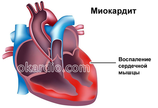 миокардит сердца