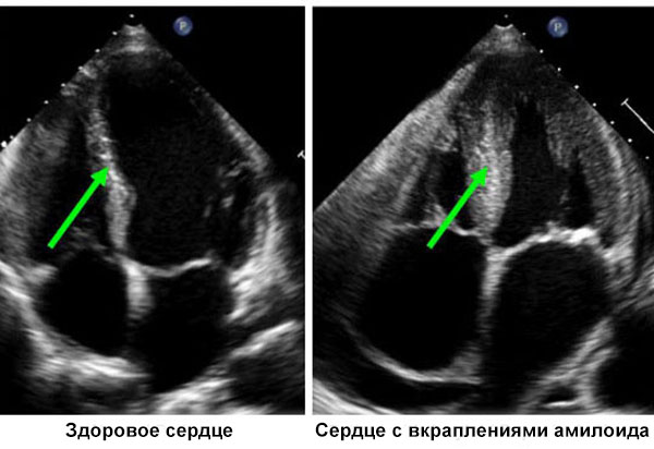пример амилоидоза сердца на УЗИ