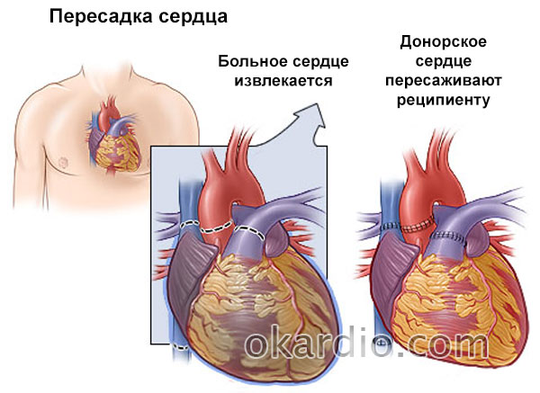 Как определить сердечный кашель
