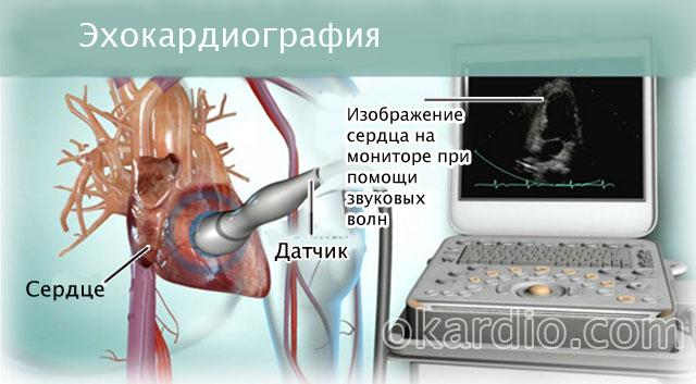 эхокардиография